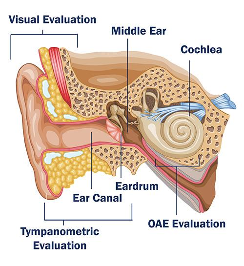 eargraphic